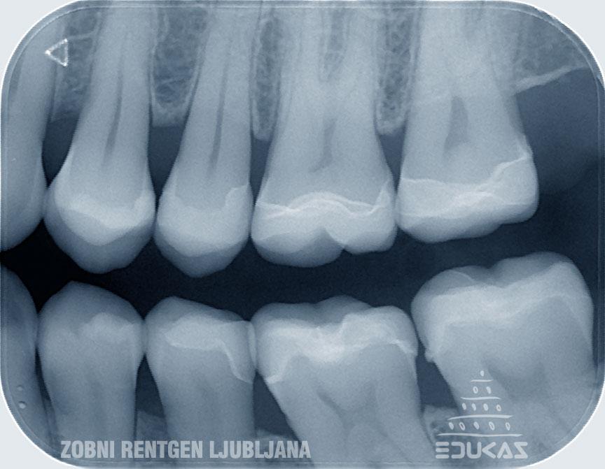 Prikaz zobnih kron