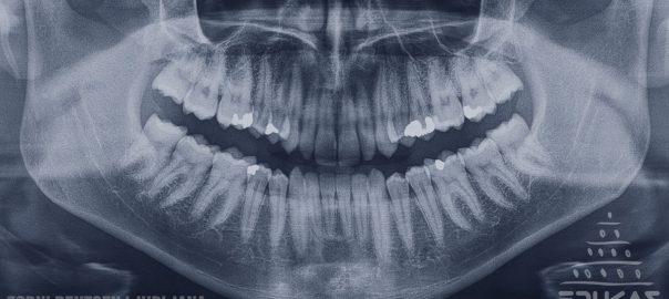 Ortopan posnetek RTG zob